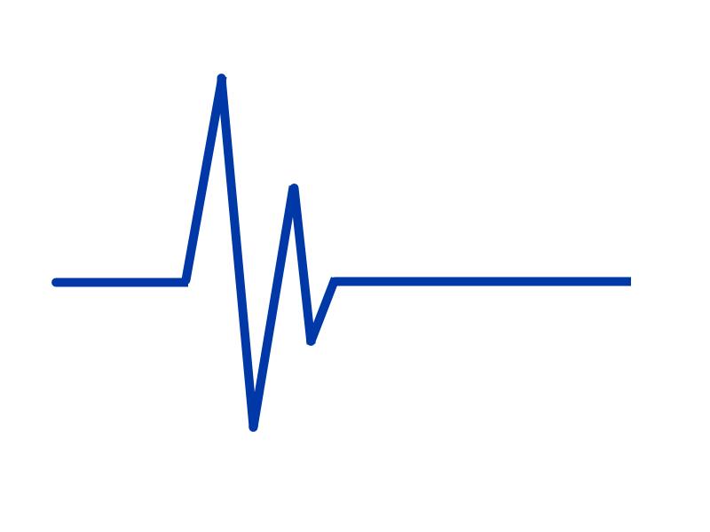 Herzrythmus